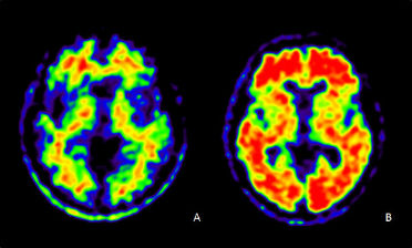 Scintigraphie des plaques amyloïdes avec le 18F-AV45 A: sujet sain B: sujet Alzheimer